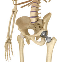 image-of-hip-replacement